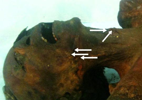 El estudio de la momia de Ramsés III determinó que fue asesinado