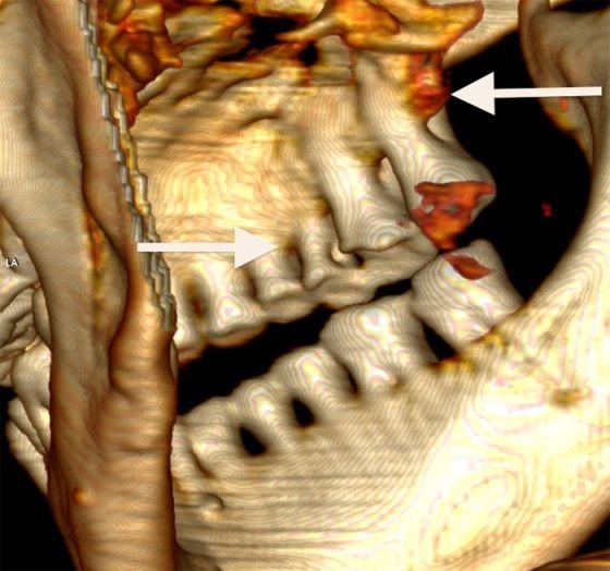 escaner dental de otzi