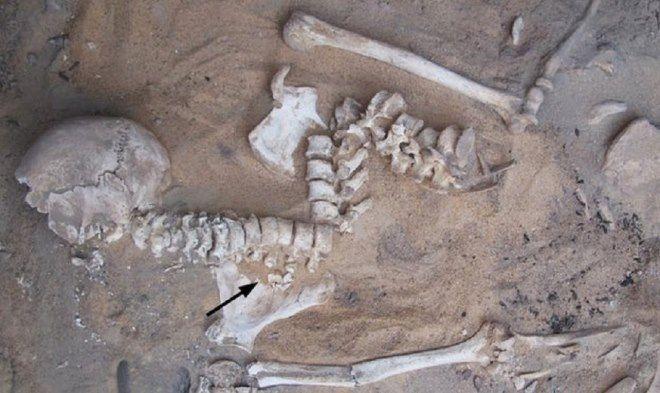 esqueleto con arteriosclerosis