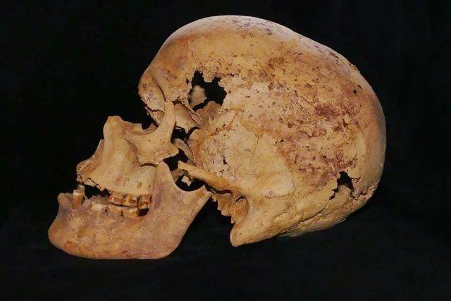 Cráneo de una mujer egipcia que muestras restos de haber padecido cáncer.