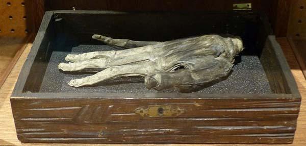 """""""Mano de Gloria"""", la mano de un ahorcado que se creía protegía a los ladrones al hacer sus fechorías."""