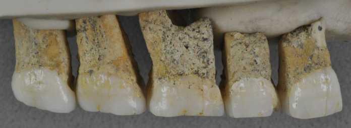 dentadura homo luzonensis