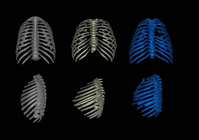 diferencias anatomia generos homo