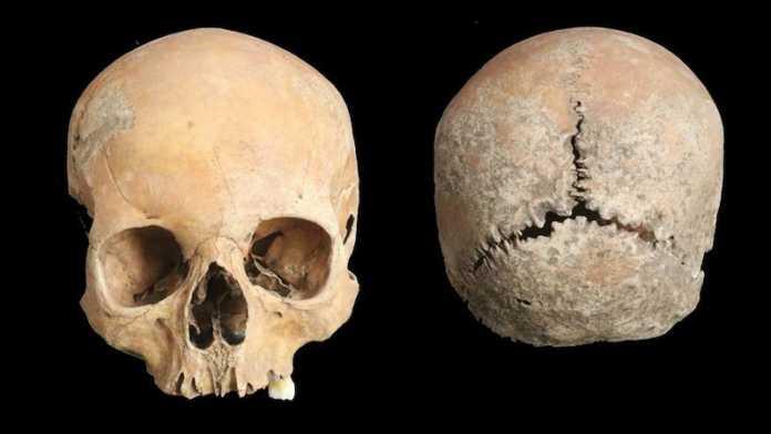 mutilacion facial inglaterra